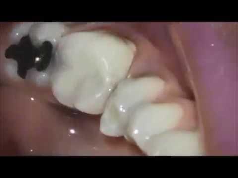 Endodontia sessão única  Patência e ampliação do forame apical