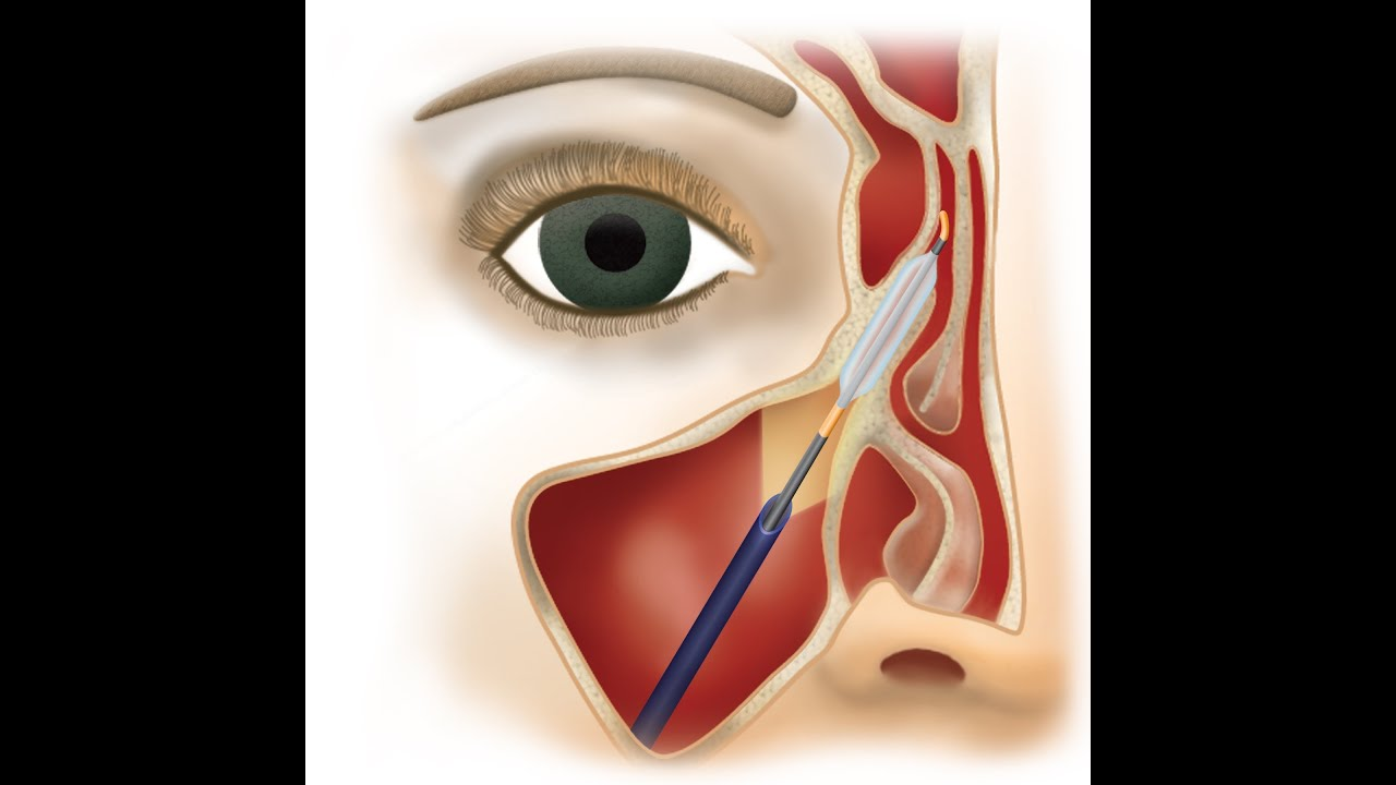 treating sinusitis with steroids
