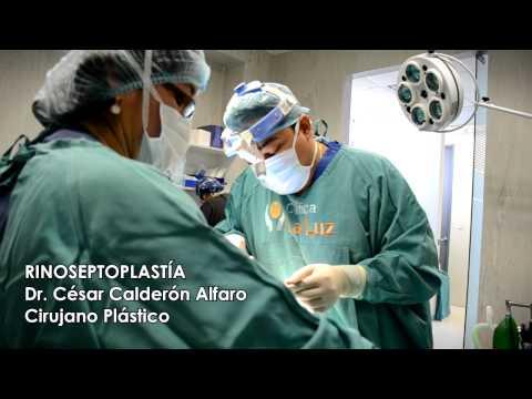 Procedimiento de Rinoseptoplastía por el Dr. César Calderón, cirujano plástico