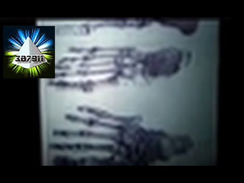 Lloyd Pye ★ Everything You Know Is Wrong Alien Starchild Skull DNA - Ancient Alien Intervention
