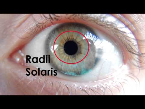 MY UPDATED IRIDOLOGY PICTURES + BEFORE PICS