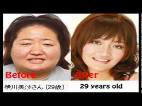 Plastic Surgery Kingdom Japan 日本の整形 Fake country Japan ねつ造訂正