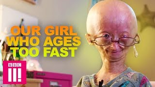 Our Girl Who Ages Too Fast: Adalia Rose | Living Differently