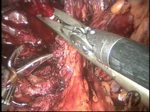 The Vattikuti Institute Prostatectomy (Robotic Prostate Surgery) for Prostate Cancer