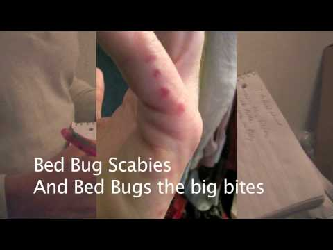 scabies burrow marks #11