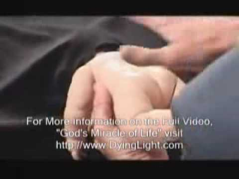 Partial-Birth Abortion Procedure With Real Instruments - Pro-Life Anti ...