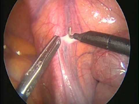    laparoscopic varicocelectomy