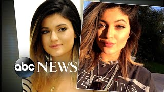 Kylie Jenner says she is no longer using temporary lip fillers
