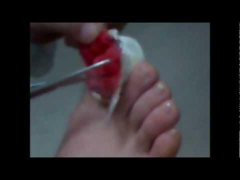 Como curar el hongo sobre los dedos las manos