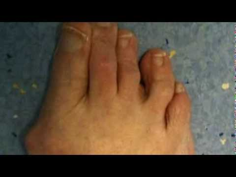 Hallux Valgus Surgery in India | Bunion Surgery in India