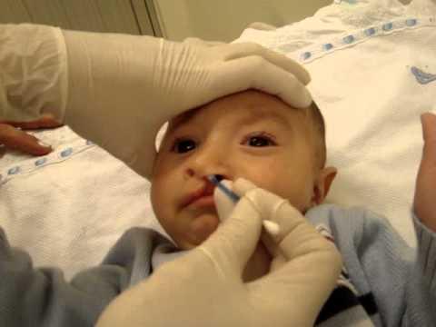 Enfermagem: Higiene oronasal em bebê com fissura labiopalatina (antes da cirurgia)