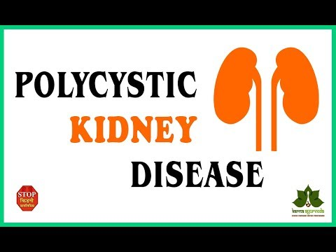 Polycystic Kidney Disease Ayurvedic Treatment ||How to Reverse Kidney Disease by Ayurvedic Method ||