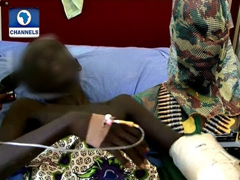 They Shot Me My Intestine Came Out -- Yobe School Survivor Recounts
