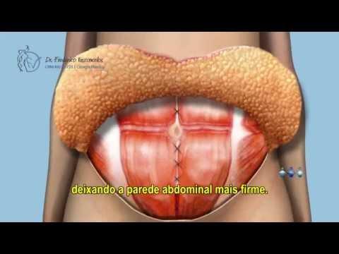Abdominoplastia BH - Plástica na Barriga