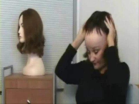 vacuum hair prothesis