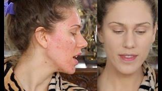 Acne Scar Foundation Routine Full Coverage Flawless