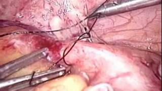 Peritonitis Apendicular Centro Laparoscópico Dr