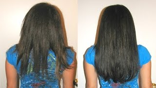 Hair Loss Treatment How To Stop Treat Control Prevent Hair