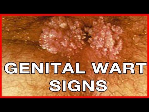 the causes symptoms and treatment of genital warts Genital warts are one of the most common symptoms, causes, and treatment for herpes herpes is a long-term but this article looks at genital.