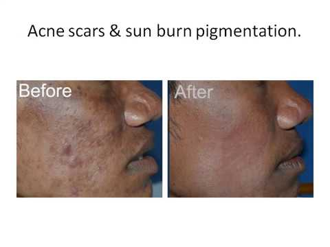 Scar Treatment Offers in Bangalore