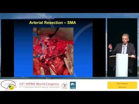 DEB06.1 Heidelberg Surgical Approach Versus Conventional Management of Pancreatic Adenocarcinoma