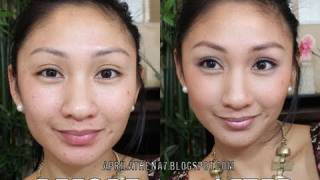 ACNE MINERAL FOUNDATION FULL COVERAGE TUTORIAL! How To