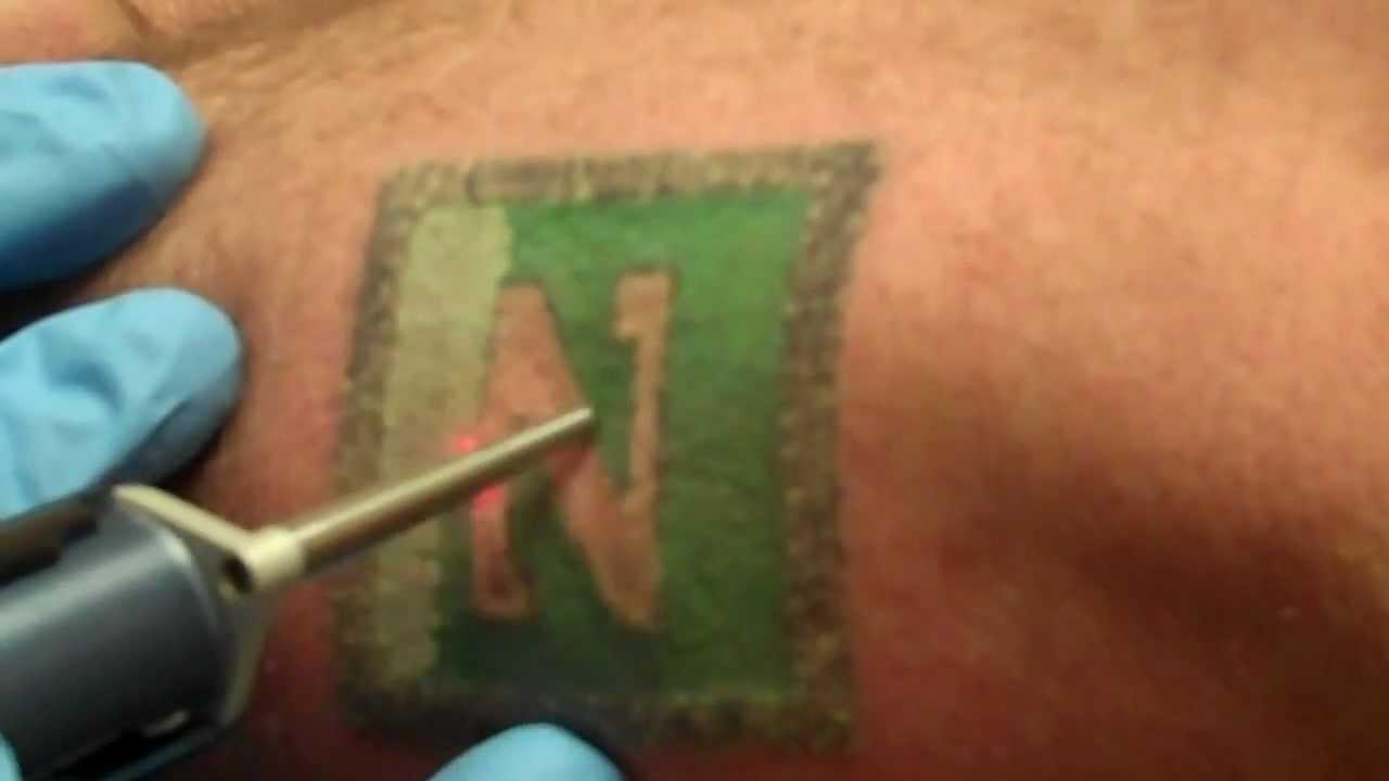 laser removal black green ink
