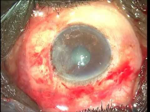 EXCISION OF PTERYGIUM WITH PUPILLARY EXTENSION WITH AUTOGRAFT Soosan Jacob