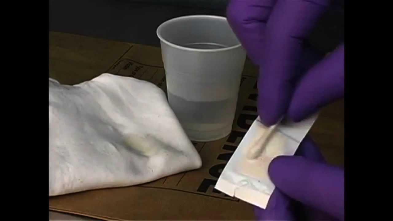 Sperm detection kit reliability