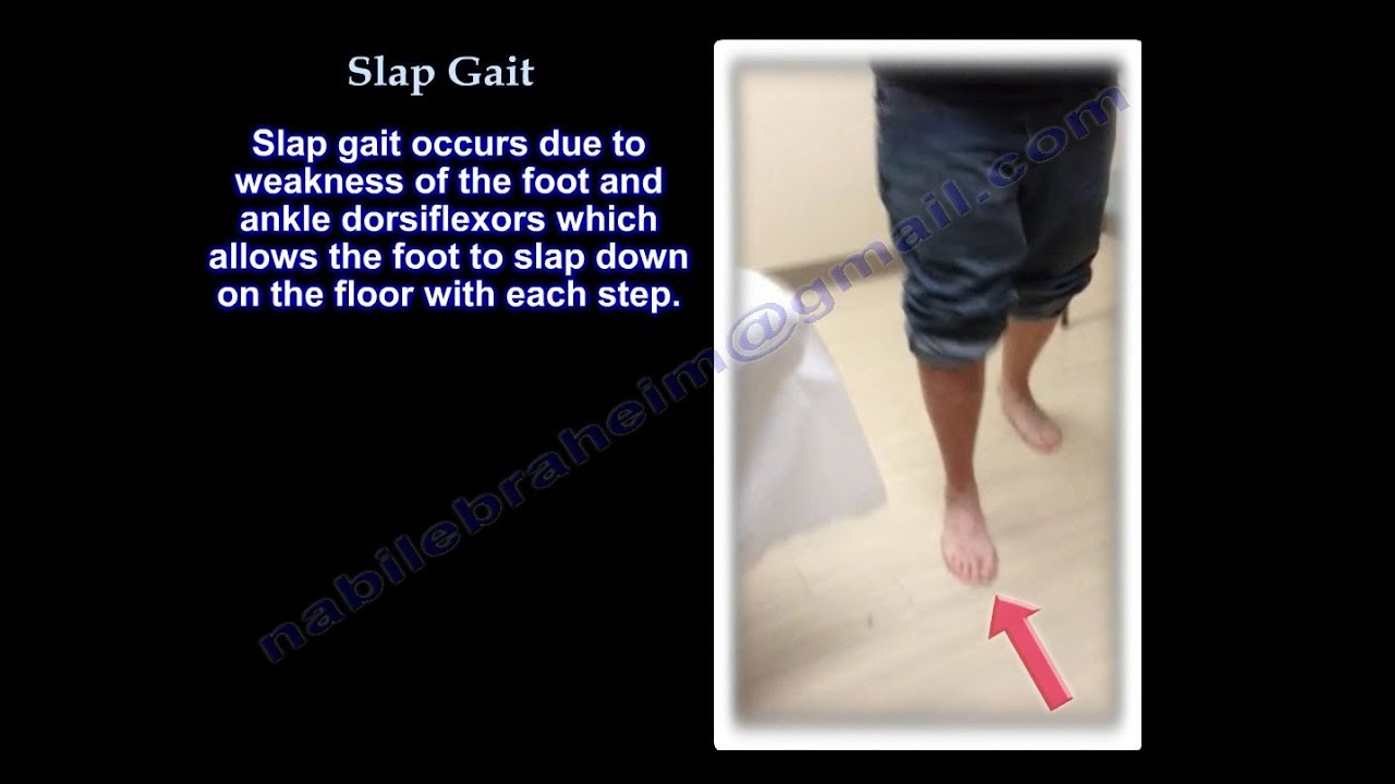 Slap Gait Steppage Gait Foot Drop Everything You