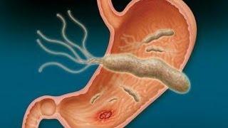 ما هي  أعراض جرثومة المعدة؟؟؟
