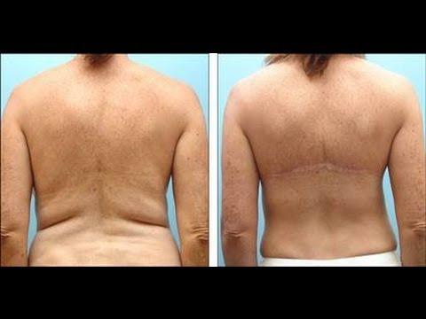 Weight, loss, surgery, pre-Op Diet - WLS Help