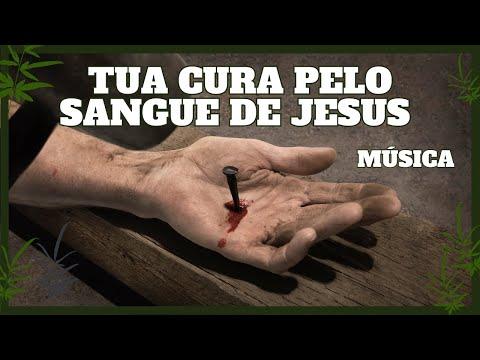 Pelo Sangue - Renascer Praise 17 - by CaminhandocomDeus