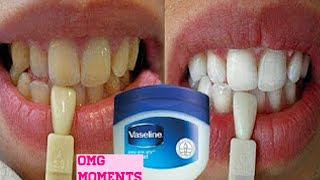 Turn dirty yellow teeth to Snow White in just 3 minutes