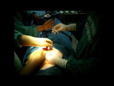 Open laparotomy  pro Ca sigmae in situ with epidural anaesthesia and spontaneous breathing