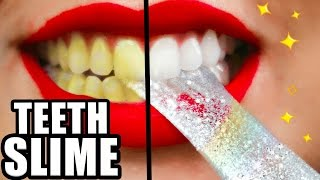 DIY Teeth Whitening SLIME! Whiter Teeth in 2 Minutes! Natalies Outlet