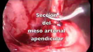 Apendicitis Aguda. Extirpación Laparoscópica.
