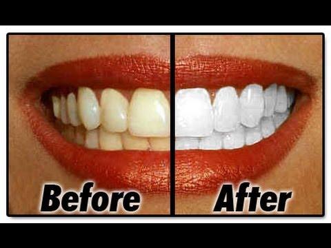 BLANQUEA tus dientes en MINUTOS! (remedio casero)