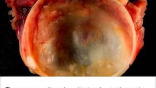 Natural Treatment Option For Subserous Fibroids