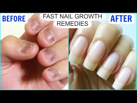 How To GROW Long Strong Nails Fast At Home | SuperPrincessjo