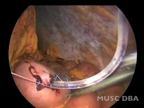 MUSC GI Surgery: Laparoscopic J Tube Placement - YouTube
