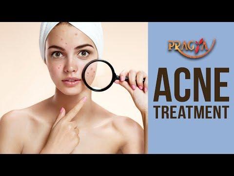 SKIN TIPS! ACNE Treatment- Dr. Vibha Sharma (Ayurveda & Panchkarma Expert)