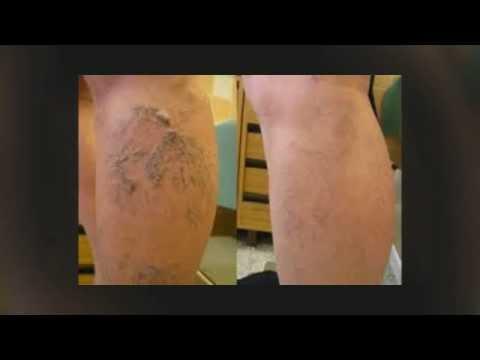 Sintomi di trombosi venosi affilati