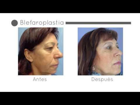 Cirugía de Párpados antes y después | Experiencia Araceli