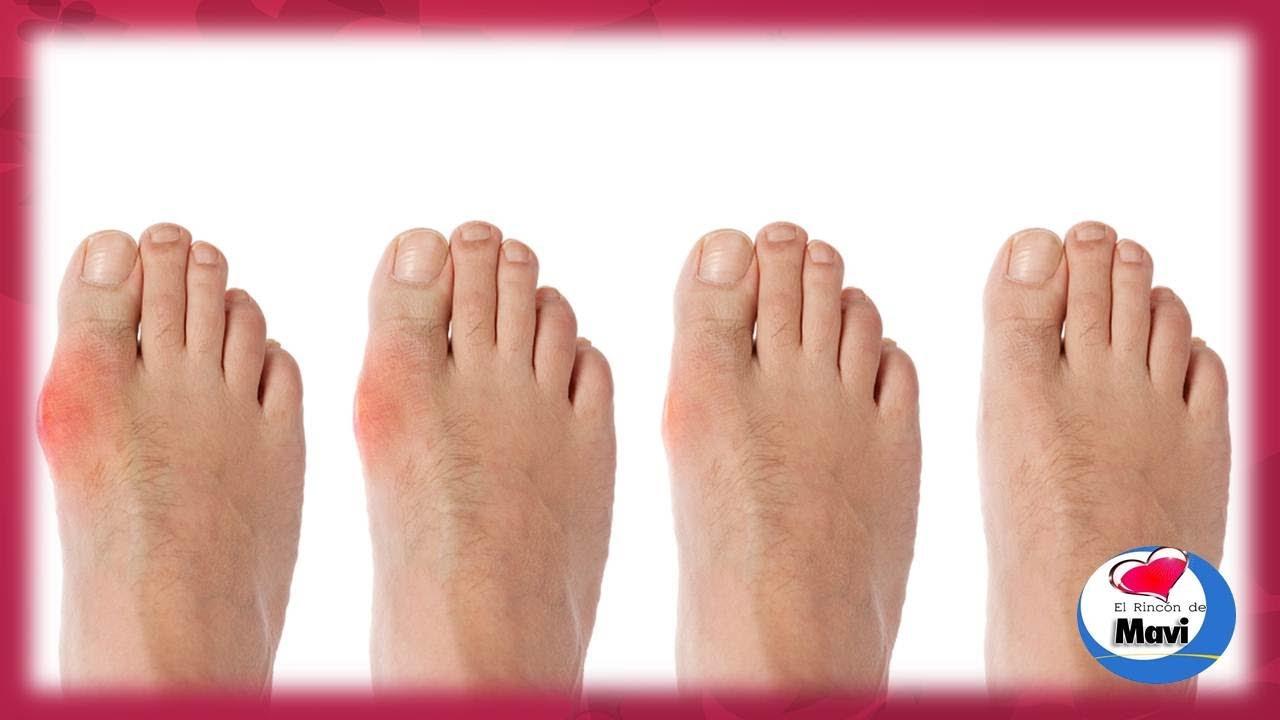 Aterradora cirug a de la cenicienta acortamiento de pies for Operacion de pies
