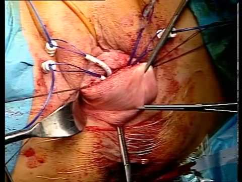 Urethral Prolapse Human Surgery of total vagin...