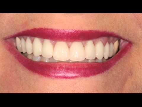 Smile Makeover & Smile Design in Beirut Lebanon - Dr. Walid Zalaket