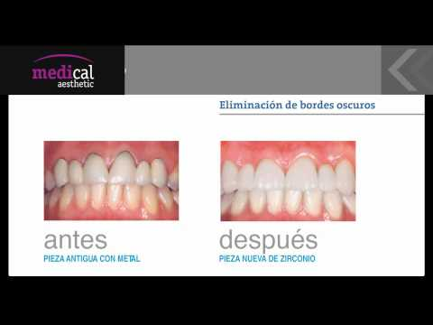 Coronas de Zirconio en Medical Aesthetic Bilbao