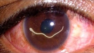 10 Worst Things That Can Happen to Your Eyes