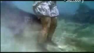 Shark Bites Off Man's Leg (calve Muscle)